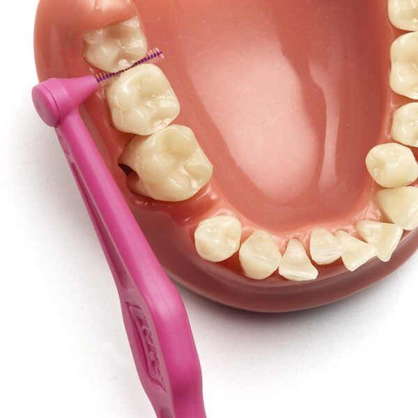 TePe hambavaheharjad Angle 6 tk - vali suurus