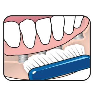 Tepe implantaadihari Orthodontic