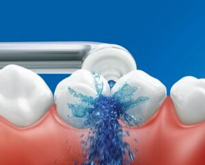 Philips Sonicare AirFloss Ultra 2.0