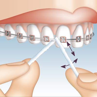 Miradent Mirafloss Implant  hambaniit sildade/breketite puhastamiseks kloorheksidiiniga 50tkx15cm