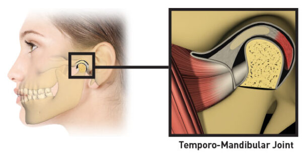 myOSA for TMJ soft clear